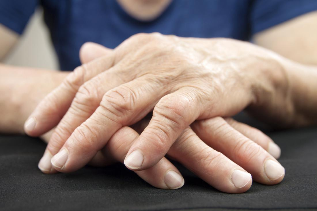 Exercises for Arthritic Hands - Colorado Pain Care