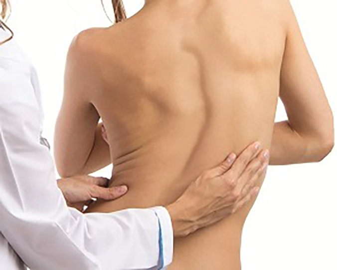 Adult Degenerative Scoliosis - Colorado Pain Care