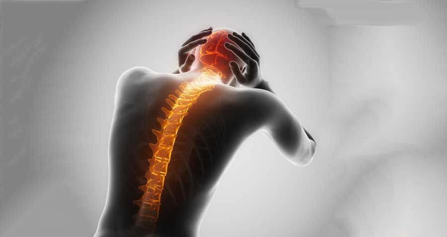 spinal headaches - Colorado Pain Care