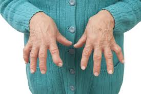 Rheumatoid Arthritis Symptoms And Treatments Colorado Pain Care