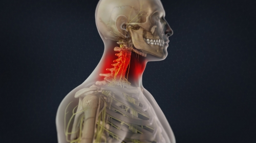 neck pain pain management denver co
