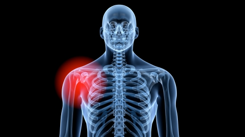 shoulder pain management denver co