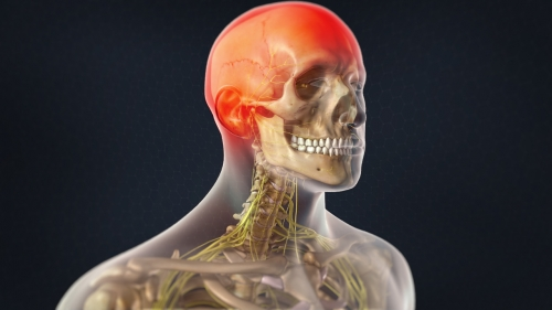 occipital neuralgia treatment pain denver co