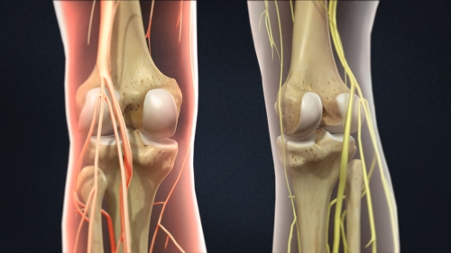 knee joint injections pain doctors denver co