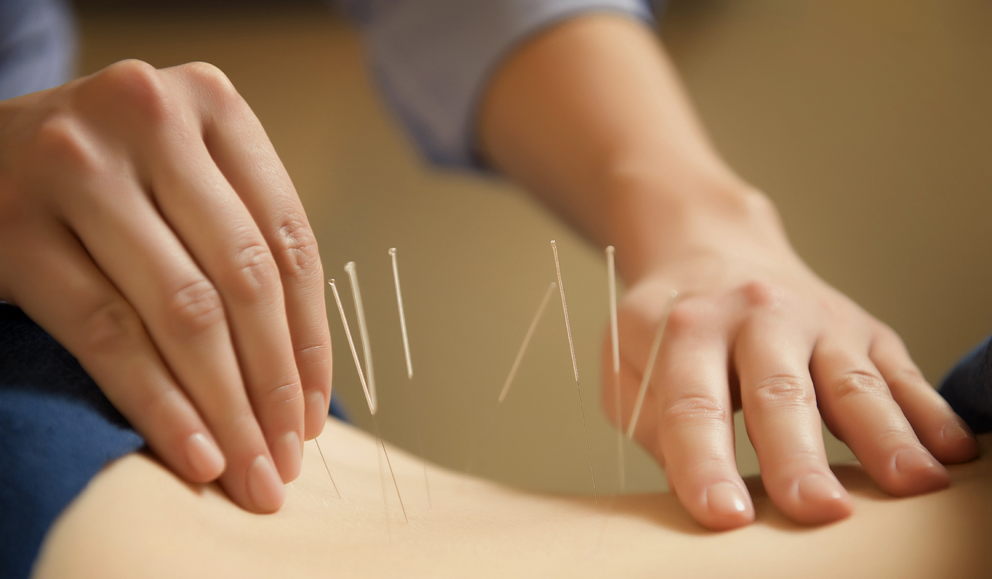 Learn All About Acupuncture In This Article
