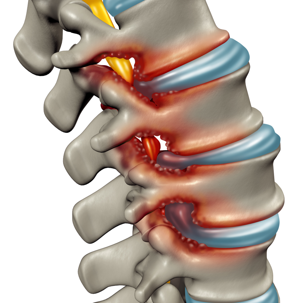 spinal stenosis pain specialists denver co